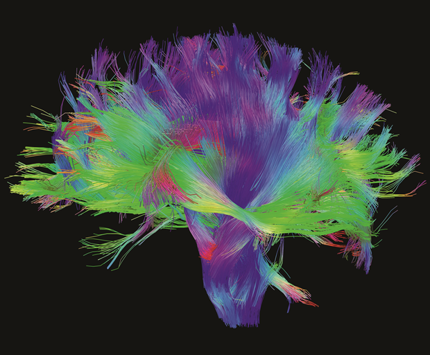 Mapping the Brain, 2014, Human Connectome Project Digital, dimensions variable. Courtesy of the Laboratory of Neuro Imaging and Martinos Center for Biomedical Imaging, Consortium of the Human Connectome Project. From Map