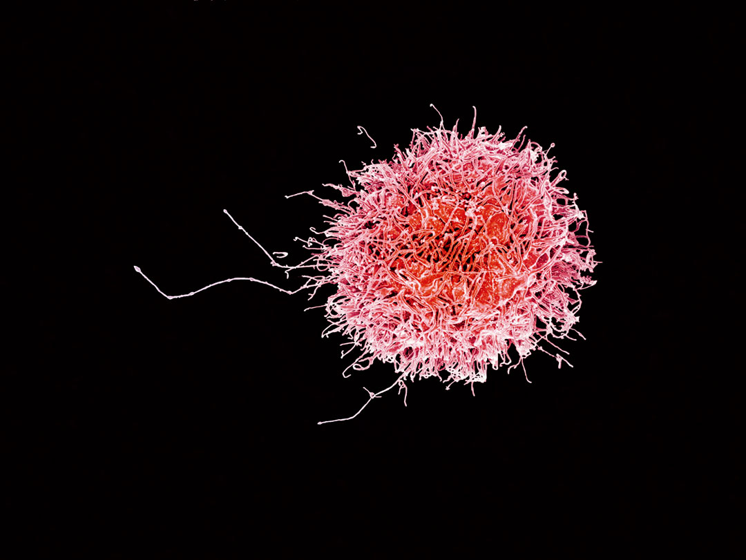 Human natural killer cell, 2016 by the National Institute of Allergy and Infectious Diseases. As reproduced in Anatomy: Exploring the Human Body