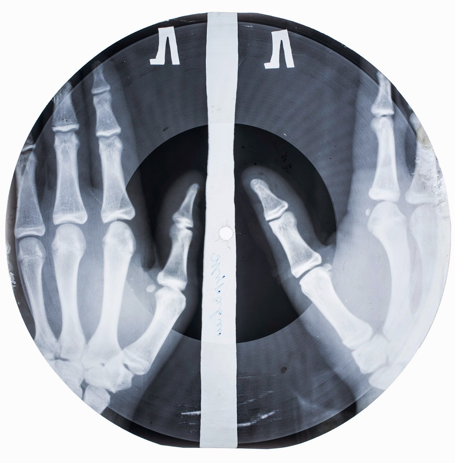 An X-Ray record, from Work and Play Behind the Iron Curtain