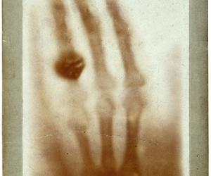 The Art of Anatomy - Wilhelm Röntgen's X-ray