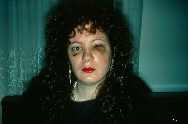 Nan Goldin one month after being battered by a boyfriend in 1984, self portrait